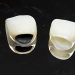 Những lưu ý khi bọc răng sứ thẩm mỹ tốt nhất bạn cần biết