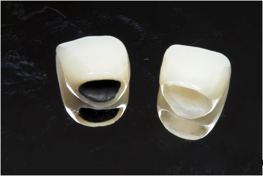 Notes on cosmetic porcelain crowns the best you need to know